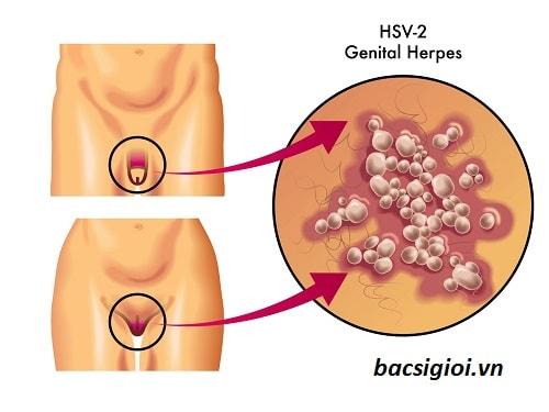 Con đường lây nhiễm virus HSV